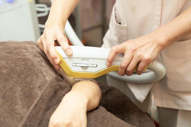 光治療(IPL)『BTLエクシライト』の脱毛