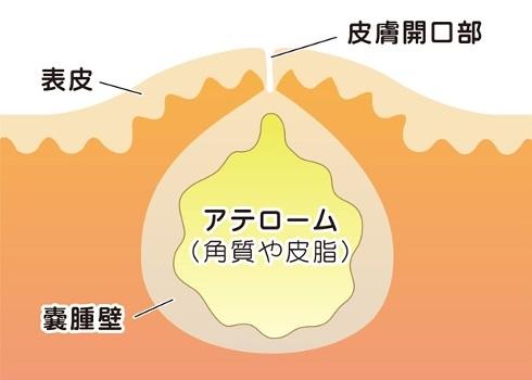 粉瘤・脂肪腫