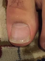 自費診療での巻き爪治療